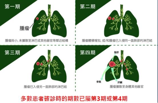 第四期肺癌患者存活率低 国际研究展新希望