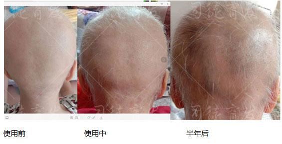 生蜜润丝太难了!让云南顾客半年育出的头发还在毛囊内