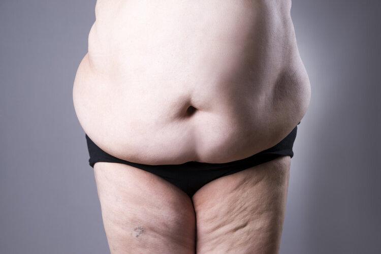 瘦子与胖子的差别:她不便秘,你便秘!